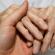 ОРВИ и артрит - лечение должно быть обдуманным