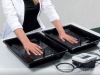 Ионофорез при гипергидрозе – безболезненный метод лечения чрезмерной потливости