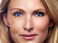Фотоомоложение до и после, эффективность и результаты процедуры