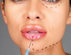 Увеличение губы в омске цена