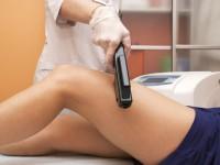 Лазерная эпиляция волос: лазерная эпиляция навсегда удаляет волосы?