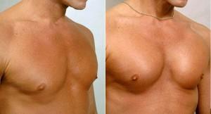 Профиль грудного импланта