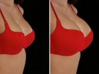 Даша пынзарь с увеличенной грудью