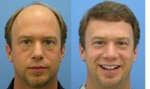 Отзывы о пересадке волос