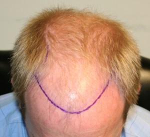 А спрей для восстановления волос ultra hair system