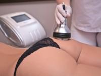 Что такое лазерная эпиляция и на сколько хватает курса лечения?