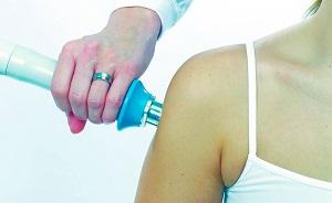 Лечение плечевой невралгии