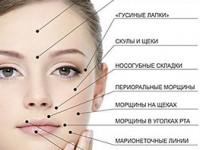 Куда колят ботокс: точки введения для коррекции морщин или устранения потливости