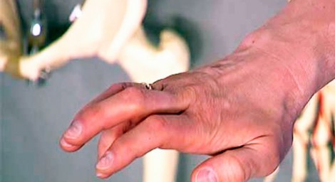 Симптомы невралгии лучевого нерва