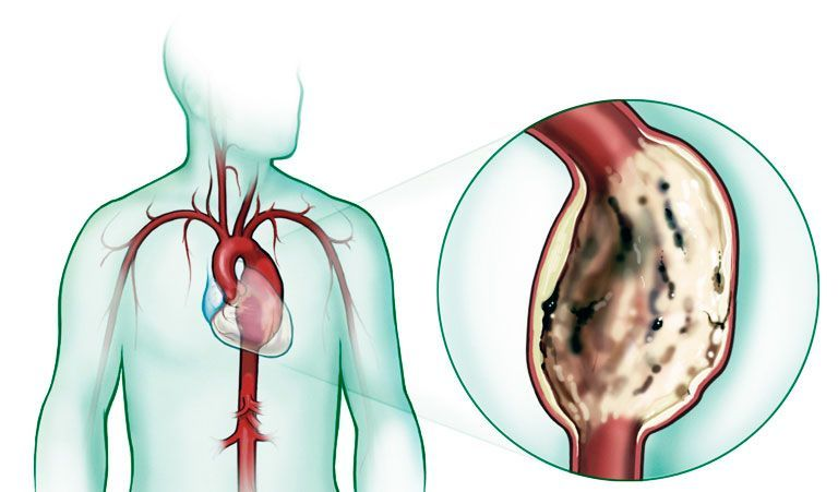 anevrizma-aorty-simptomy.jpg