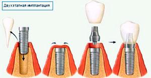 dvuhetapnaja-implantacija-zubov