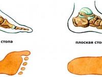 Плоскостопие: причины и способы лечения