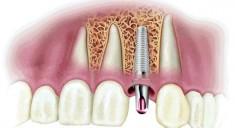 Экспресс имплантация зубов