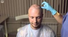 Сколько стоит пересадка волос?