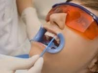 Простое фторирование зубов