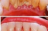 Как снимают зубной камень?