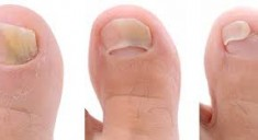 Лечение ногтевого грибка