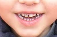 Серебрение зубов у детей: все за и против