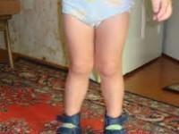 Причины вальгуса стопы. Течение болезни