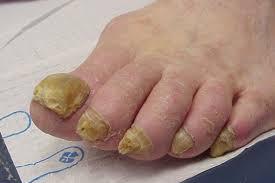 Заболевания ногтей на ногах
