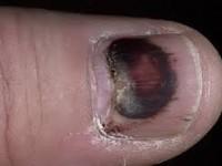 Ногти на ногах - грибок