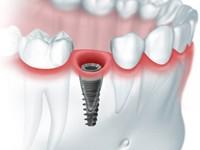 Показания для одномоментной имплантации зубов