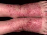 Красные пятна как симптом внутреннего заболевания