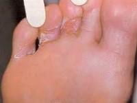 Как лечат трещины между пальцами ног?