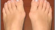Воспаление косточки большого пальца ноги