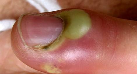 Воспаление ногтя большого пальца ноги