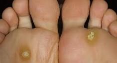 Как лечить шипицу на ступне?