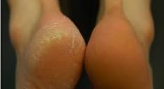 Как справиться с огрубевшей кожей на пятках?