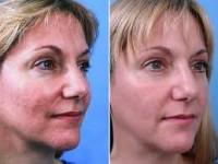 Восстановление эпидермиса после алмазной дермабразии