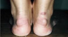 Бурсит ахиллова сухожилия