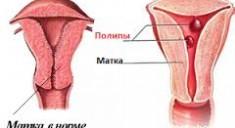 Как лечить полипы матки?