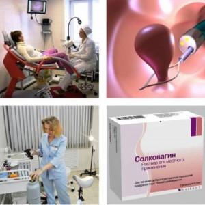 Основной курс лечения эндометриальных полипов