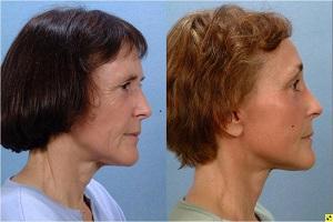 Операция подтяжки лица