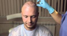 хирургическая пересадка волос
