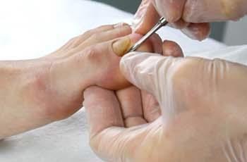 Грибок на ногте большого пальца