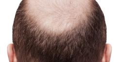 Почему выпадают волосы на голове