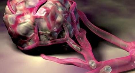 Выявлен новый фактор в развитии злокачественных опухолей