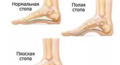 Лечение плоскостопия у взрослых
