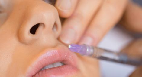 Контур губ гиалуроновой кислотой