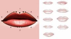 Коррекция асимметрии губ