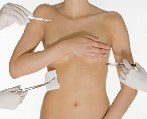 Операция по изменению объема груди