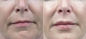 Технология Fractora для плотной кожи