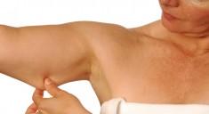 Подтяжка кожи рук