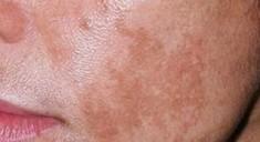 Lummeca - удаление пигментации