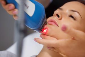 Особенности применения лазера в косметологии
