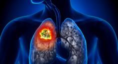 Одобрено новое лекарство от рака легких